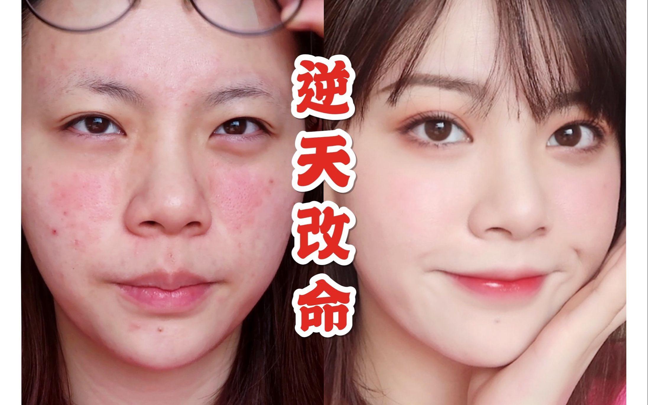 【嫂】清纯女学生?烂脸期的逆天改命妆!无眼线so简单!