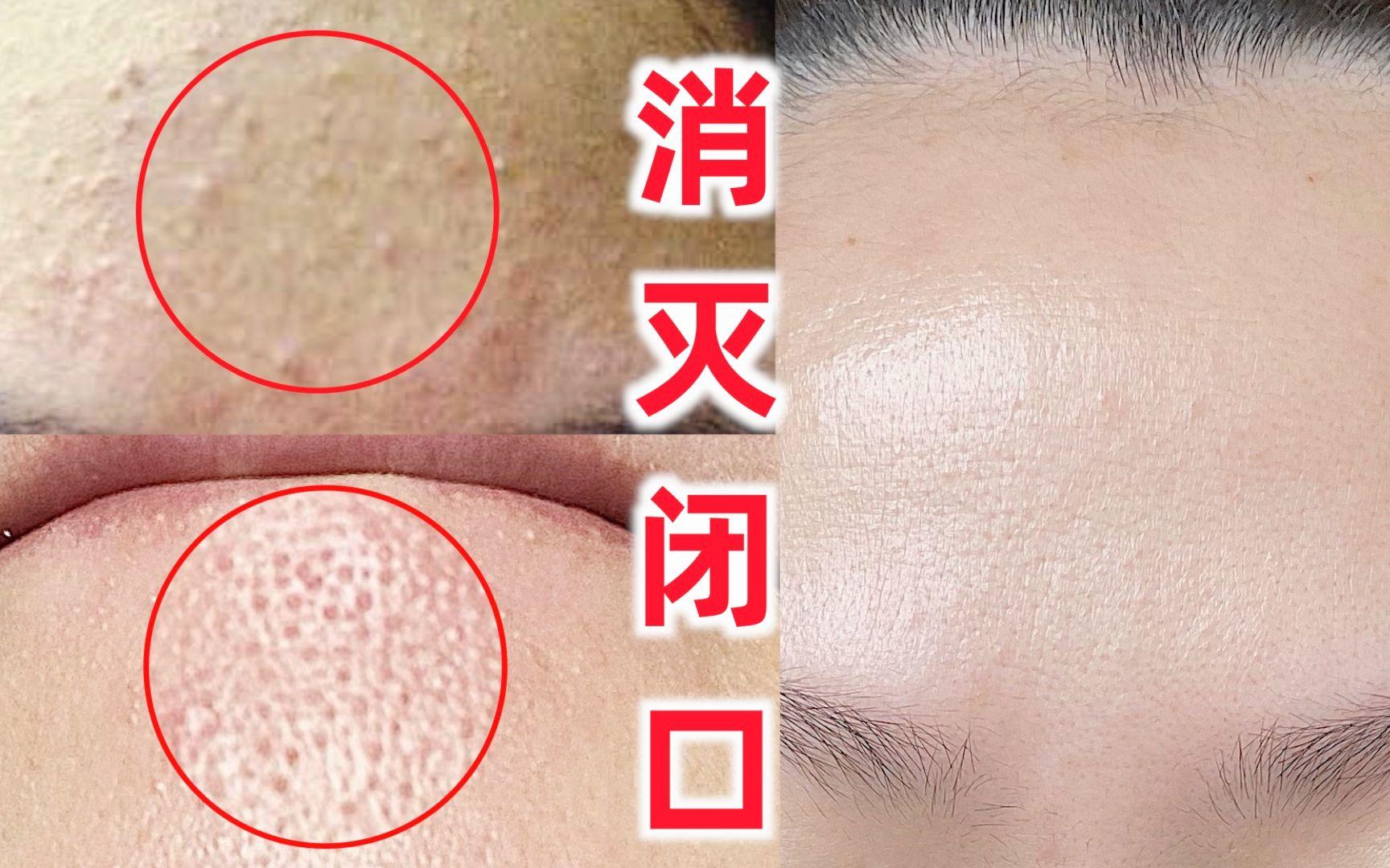 28天清除闭口 日本美容师教你在家正确刷酸去闭口