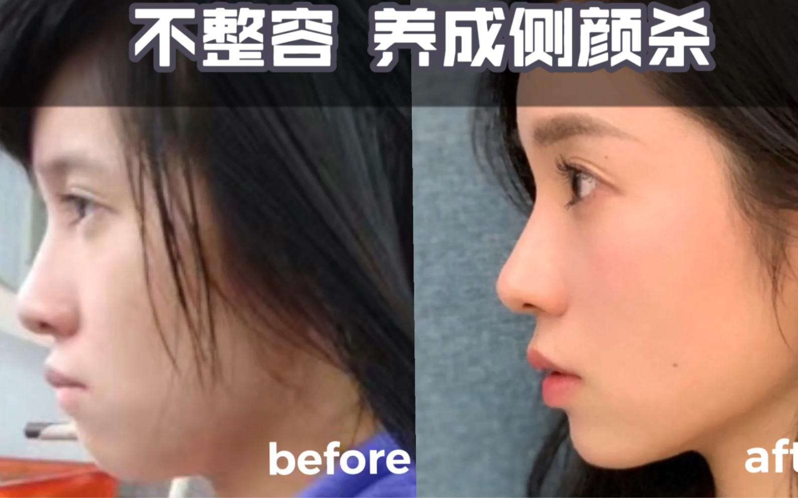 不整容!科学改善凸嘴下巴后缩 瘦双下巴 告别土气脸,养成侧颜杀