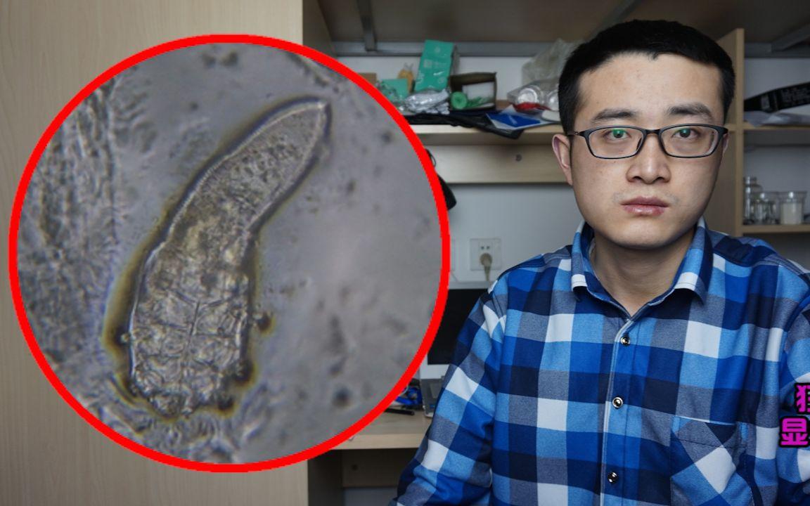 黑头显微镜图片_显微镜放大黑头 螨虫2000倍,放大2000倍的螨虫就像外星生物_哔哩 ...